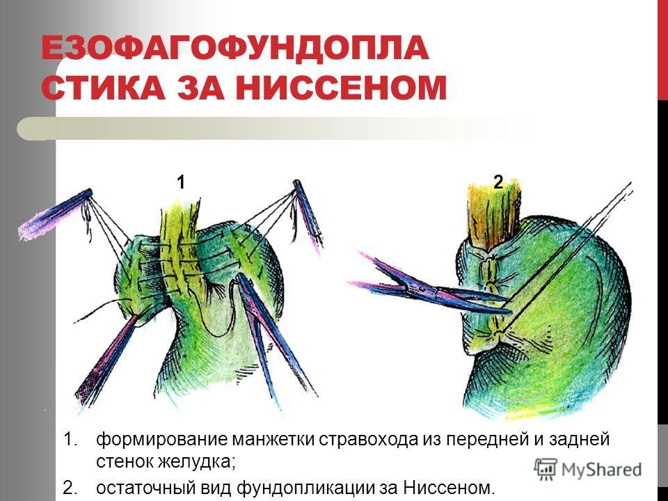 ЕЗОФАГОФУНДОПЛА СТИКА ЗА НИССЕНОМ 12 1.формирование манжетки стравохода из передней и задней стенок желудка; 2.остаточный вид фундопликации за Ниссеном.