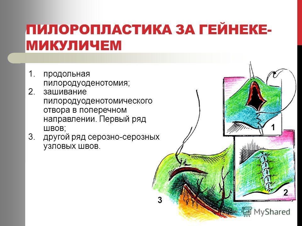 ПИЛОРОПЛАСТИКА ЗА ГЕЙНЕКЕ- МИКУЛИЧЕМ 1.продольная пилородуоденотомия; 2.зашивание пилородуоденотомического отвора в поперечном направлении. Первый ряд швов; 3.другой ряд серозно-серозных узловых швов. 1 2 3