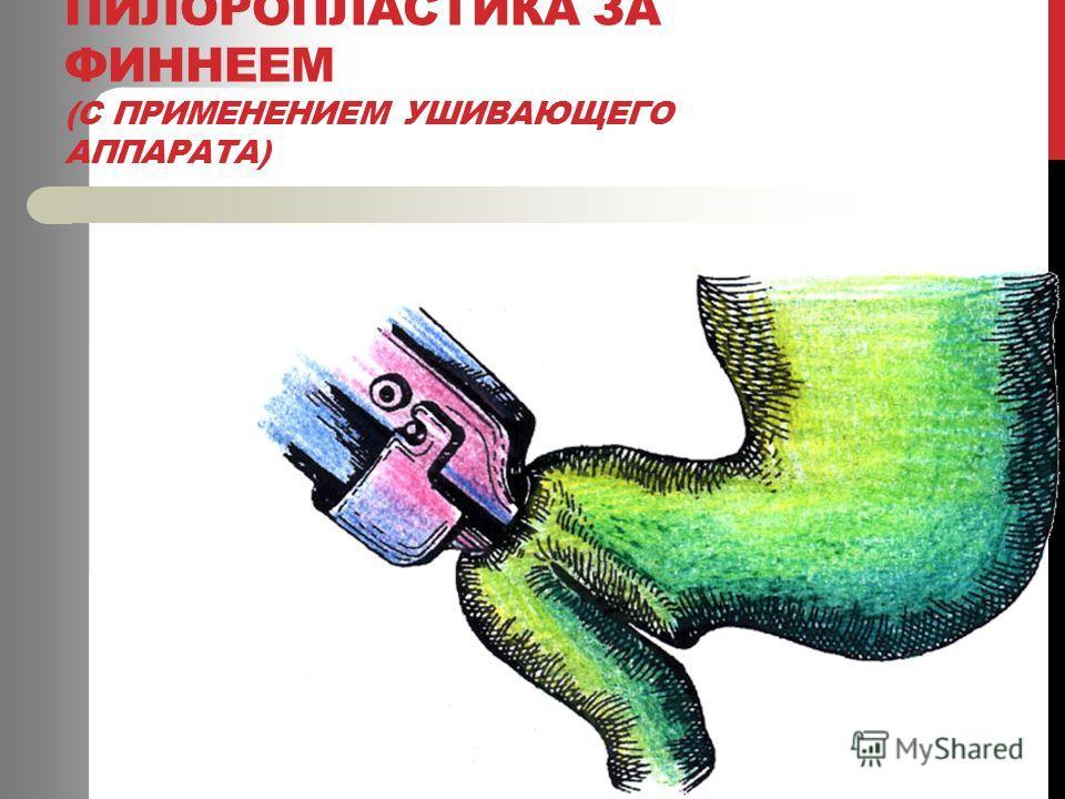 ПИЛОРОПЛАСТИКА ЗА ФИННЕЕМ (С ПРИМЕНЕНИЕМ УШИВАЮЩЕГО АППАРАТА)