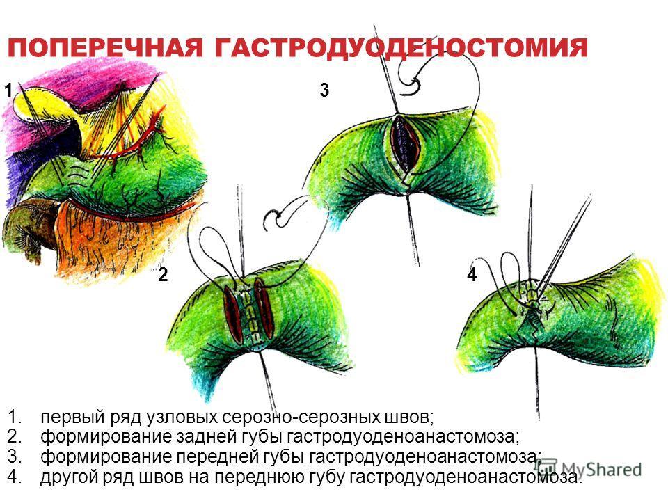ПОПЕРЕЧНАЯ ГАСТРОДУОДЕНОСТОМИЯ 1 24 3 1.первый ряд узловых серозно-серозных швов; 2.формирование задней губы гастродуоденоанастомоза; 3.формирование передней губы гастродуоденоанастомоза; 4.другой ряд швов на переднюю губу гастродуоденоанастомоза.