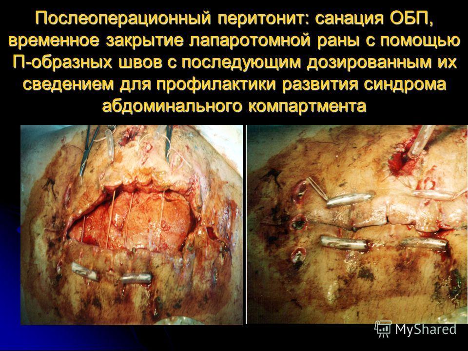 Послеоперационный перитонит: санация ОБП, временное закрытие лапаротомной раны с помощью П-образных швов с последующим дозированным их сведением для профилактики развития синдрома абдоминального компартмента
