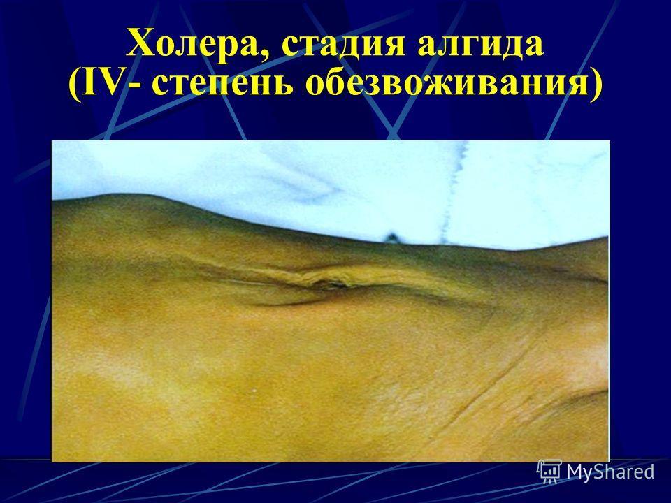 Холера, стадия алгида (IV- степень обезвоживания)