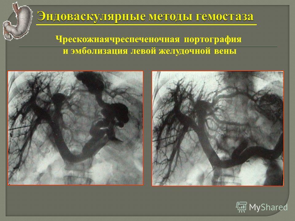 Чрескожнаячреспеченочная портография и эмболизация левой желудочной вены