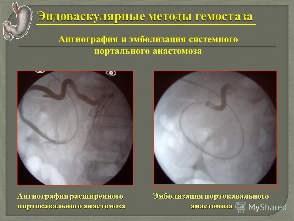 Ангиография и эмболизация системного портального анастомоза Ангиография расширенного портокавального анастомоза портокавального анастомоза Эмболизация портокавального анастомоза