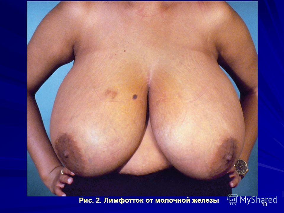 13 Рис. 2. Лимфотток от молочной железы