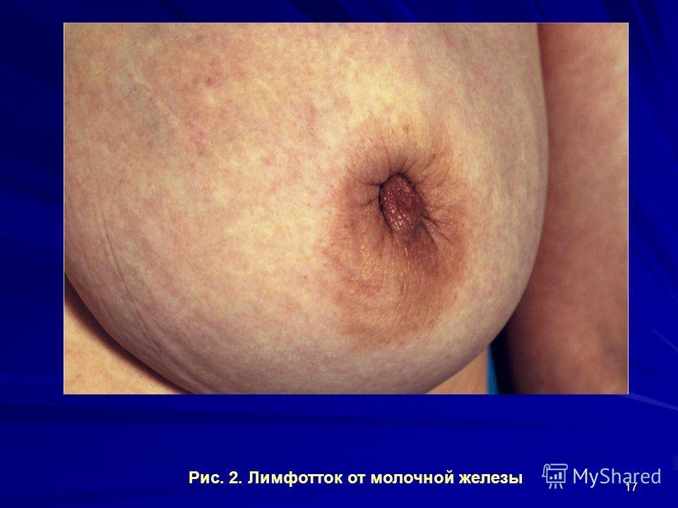 17 Рис. 2. Лимфотток от молочной железы