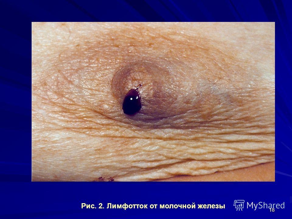 18 Рис. 2. Лимфотток от молочной железы