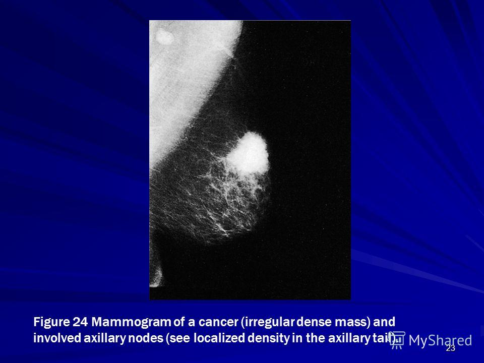 23 Figure 24 Mammogram of a cancer (irregular dense mass) and involved axillary nodes (see localized density in the axillary tail).