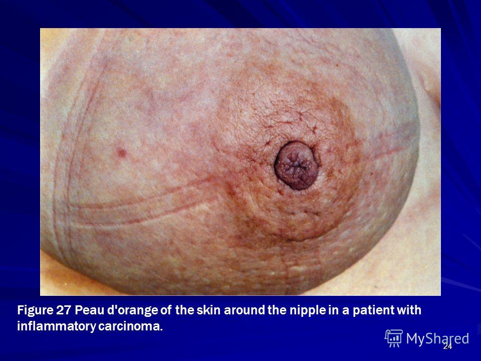 24 Figure 27 Peau d'orange of the skin around the nipple in a patient with inflammatory carcinoma.