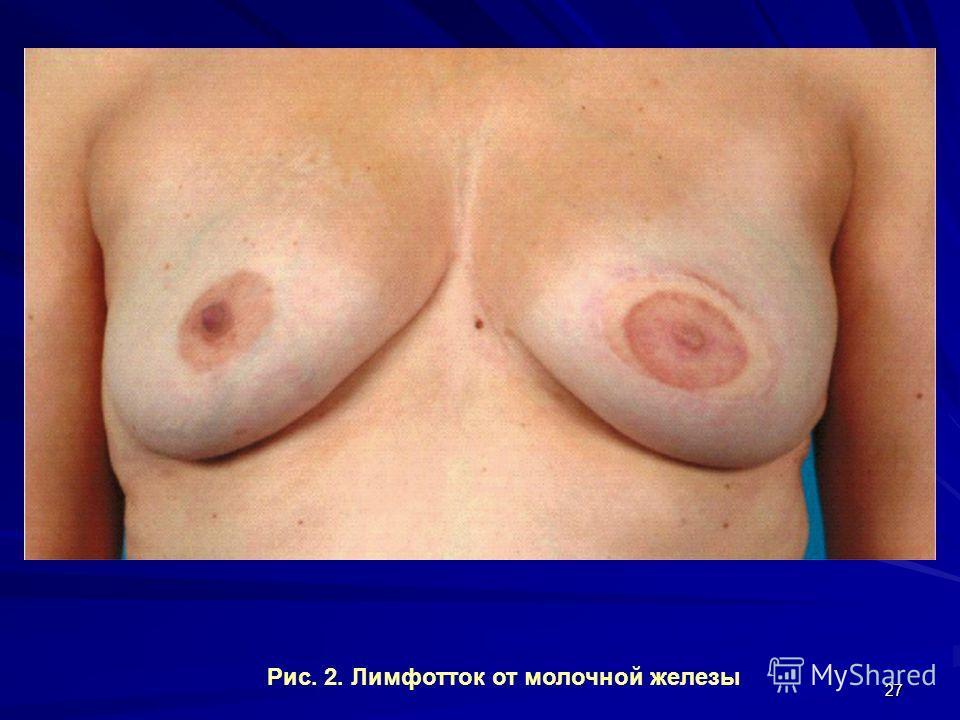 27 Рис. 2. Лимфотток от молочной железы