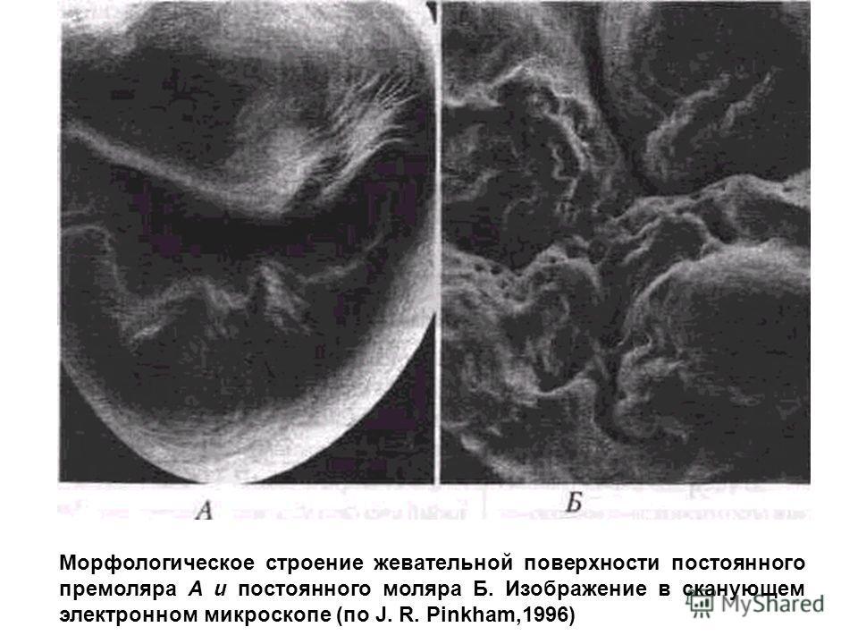 Морфологическое строение жевательной поверхности постоянного премоляра А и постоянного моляра Б. Изображение в сканующем электронном микроскопе (по J. R. Pinkham,1996)