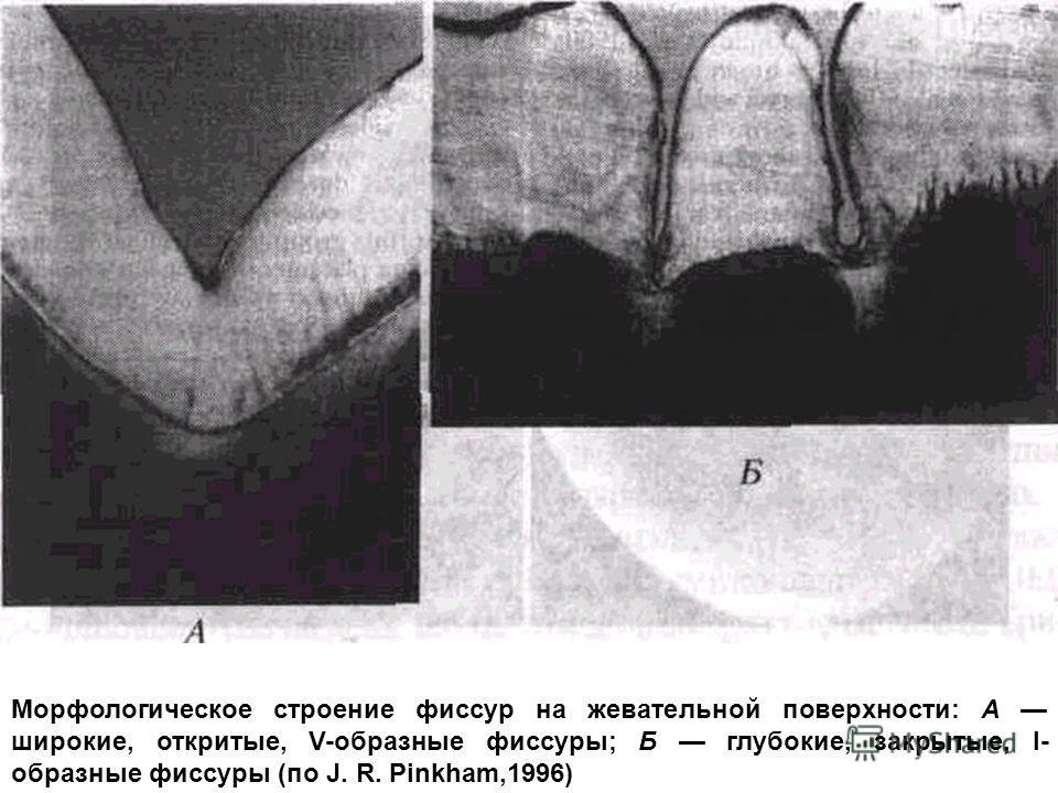 Морфологическое строение фиссур на жевательной поверхности: А широкие, откритые, V-образные фиссуры; Б глубокие, закрытые, І- образные фиссуры (по J. R. Pinkham,1996)