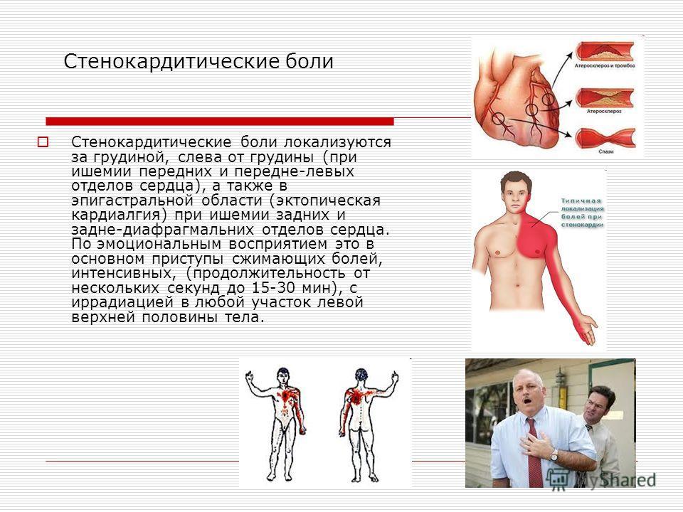 Стенокардитические боли Стенокардитические боли локализуются за грудиной, слева от грудины (при ишемии передних и передне-левых отделов сердца), а также в эпигастральной области (эктопическая кардиалгия) при ишемии задних и задне-диафрагмальних отдел