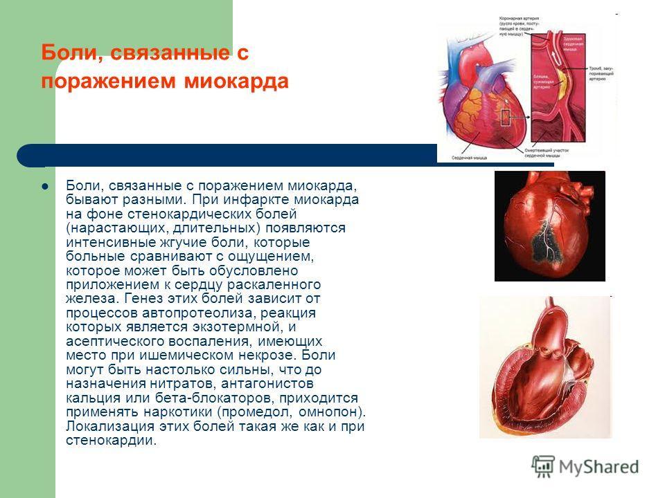 Боли, связанные с поражением миокарда Боли, связанные с поражением миокарда, бывают разными. При инфаркте миокарда на фоне стенокардических болей (нарастающих, длительных) появляются интенсивные жгучие боли, которые больные сравнивают с ощущением, ко