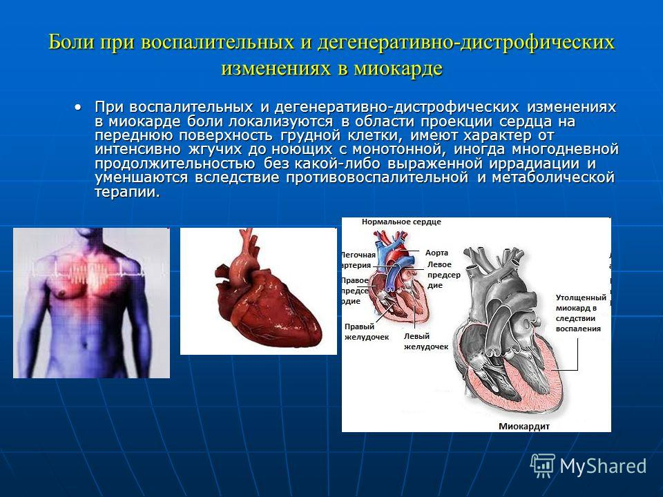 Боли при воспалительных и дегенеративно-дистрофических изменениях в миокарде При воспалительных и дегенеративно-дистрофических изменениях в миокарде боли локализуются в области проекции сердца на переднюю поверхность грудной клетки, имеют характер от
