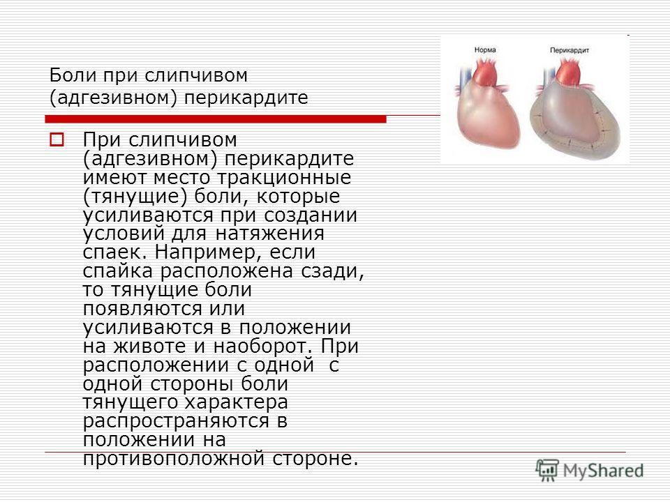 Боли при слипчивом (адгезивном) перикардите При слипчивом (адгезивном) перикардите имеют место тракционные (тянущие) боли, которые усиливаются при создании условий для натяжения спаек. Например, если спайка расположена сзади, то тянущие боли появляют