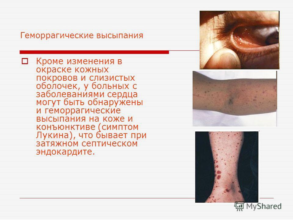 Геморрагические высыпания Кроме изменения в окраске кожных покровов и слизистых оболочек, у больных с заболеваниями сердца могут быть обнаружены и геморрагические высыпания на коже и конъюнктиве (симптом Лукина), что бывает при затяжном септическом э
