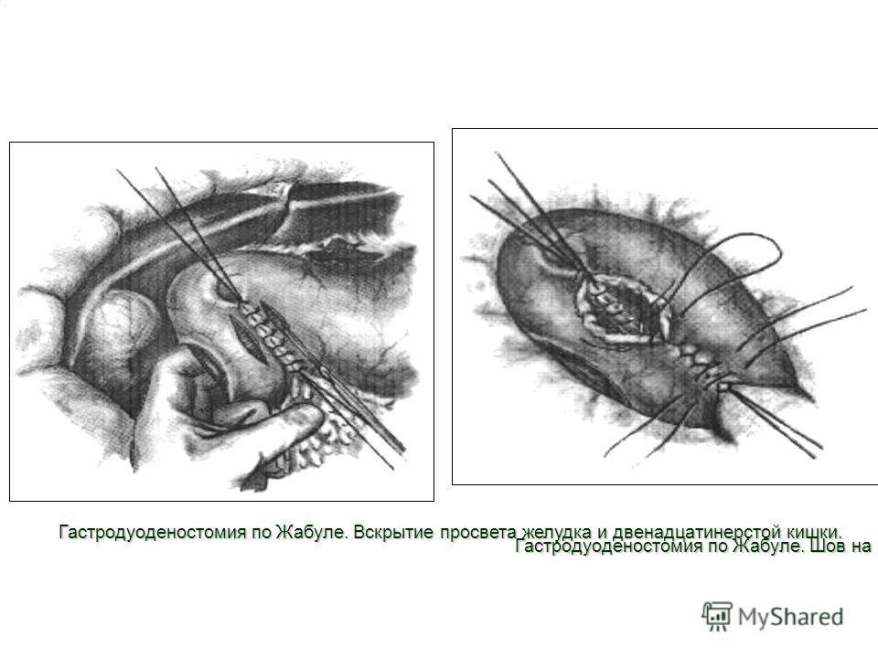 8 Гастродуоденостомия по Жабуле. Вскрытие просвета желудка и двенадцатинерстой кишки. Гастродуоденостомия по Жабуле. Шов на переднюю губу.