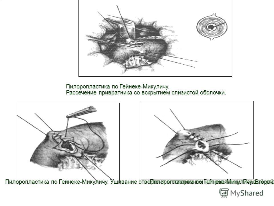 9 Пилоропластика по Гейнеке-Микуличу. Рассечение привратника со вскрытием слизистой оболочки. Пилоропластика по Гейнеке-Микуличу. Ушивание отверстия в поперечном направлении. Первый ряд швов. Пилоропластика по Гейнеке-Микуличу. Второй ряд швов.