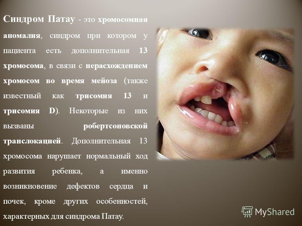 Синдром Патау фото