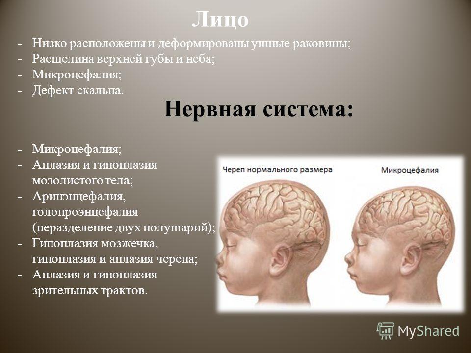 Лицо -Низко расположены и деформированы ушные раковины; -Расщелина верхней губы и неба; -Микроцефалия; -Дефект скальпа. Нервная система: -Микроцефалия; -Аплазия и гипоплазия мозолистого тела; -Аринэнцефалия, голопроэнцефалия (неразделение двух полуша
