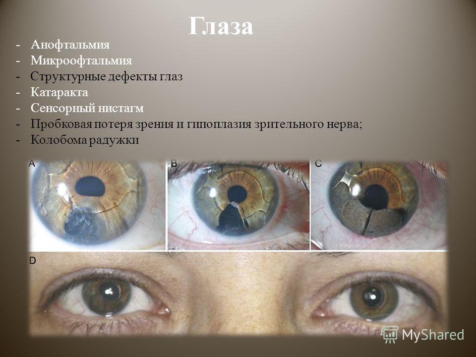 Глаза -Анофтальмия -Микроофтальмия - Структурные дефекты глаз -Катаракта -Сенсорный нистагм -Пробковая потеря зрения и гипоплазия зрительного нерва; -Колобома радужки