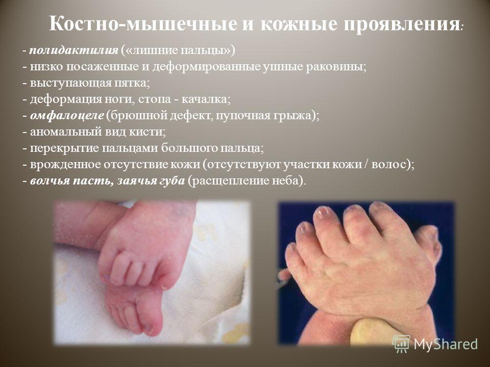 Костно-мышечные и кожные проявления : - полидактилия («лишние пальцы») - низко посаженные и деформированные ушные раковины; - выступающая пятка; - деформация ноги, стопа - качалка; - омфалоцеле (брюшной дефект, пупочная грыжа); - аномальный вид кисти