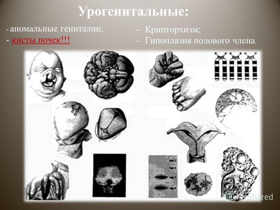 Урогенитальные: - аномальные гениталии; - кисты почек!!! -Крипторхизм; -Гипоплазия полового члена.