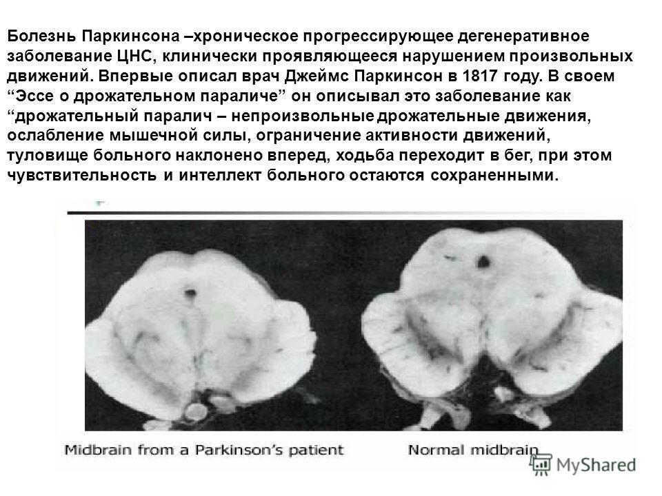 Болезнь Паркинсона –хроническое прогрессирующее дегенеративное заболевание ЦНС, клинически проявляющееся нарушением произвольных движений. Впервые описал врач Джеймс Паркинсон в 1817 году. В своемЭссе о дрожательном параличе он описывал это заболеван