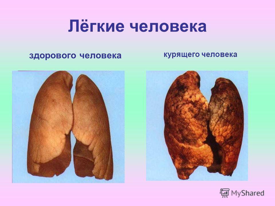 Лёгкие человека здорового человека курящего человека