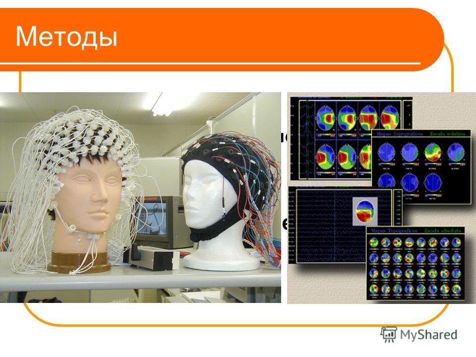 Методы ЭЭГ / МЭГ Дешево, мобильно, быстро (+) Низкое разрешение (-) Томография Пульс, дыхание, температура…