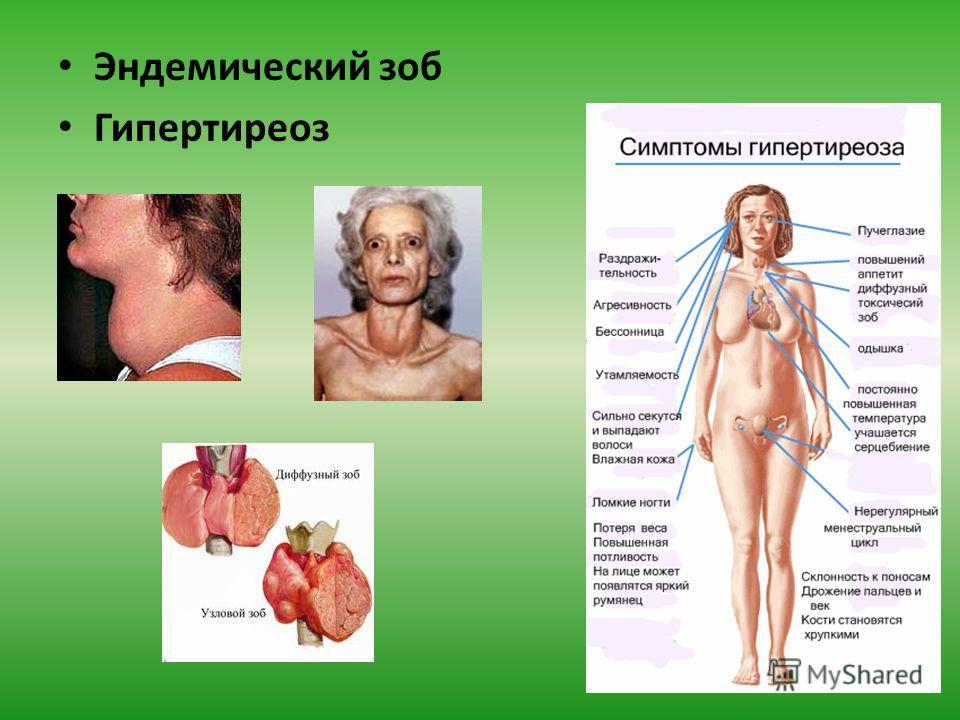 Эндемический зоб Гипертиреоз
