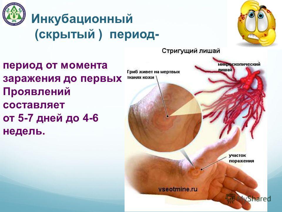 Инкубационный (скрытый ) период- период от момента заражения до первых Проявлений составляет от 5-7 дней до 4-6 недель.