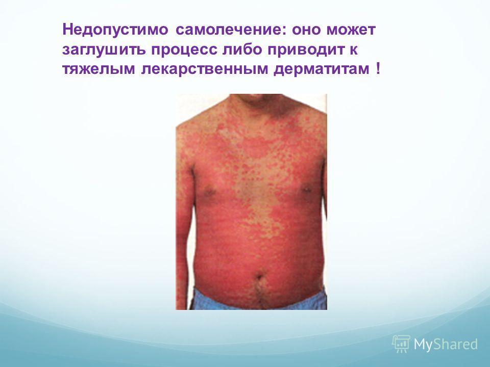 Недопустимо самолечение: оно может заглушить процесс либо приводит к тяжелым лекарственным дерматитам !