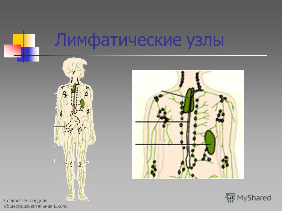 Селковская средняя общеобразовательная школа Лимфатические узлы