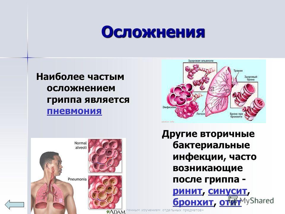 МОУ «СОШ 14 с углубленным изучением отдельных предметов» Осложнения Наиболее частым осложнением гриппа является пневмония пневмония Другие вторичные бактериальные инфекции, часто возникающие после гриппа - ринит, синусит, бронхит, отит ринитсинусит б