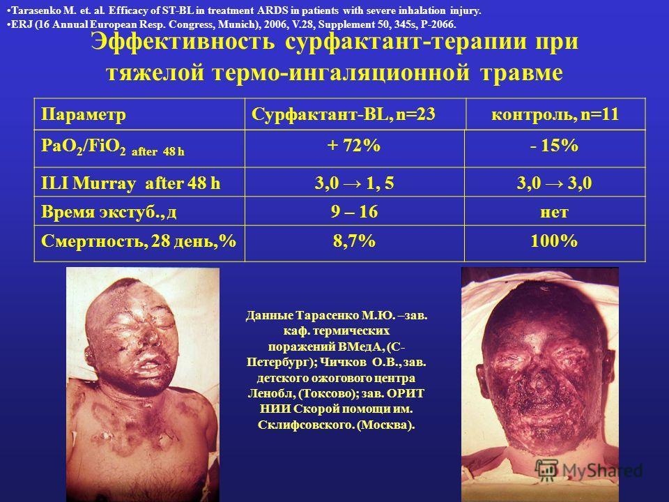 Эффективность сурфактант-терапии при тяжелой термо-ингаляционной травме PaO 2 /FiO 2 after 48 h + 72%- 15% ILI Murray after 48 h3,0 1, 53,0 Время экстуб., д9 – 16нет Смертность, 28 день,%8,7%100% ПараметрСурфактант-BL, n=23контроль, n=11 Данные Тарас