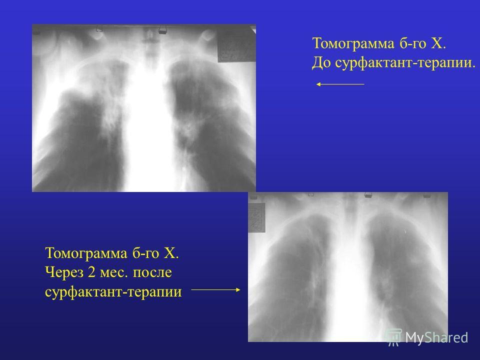 Томограмма б-го Х. До сурфактант-терапии. Томограмма б-го Х. Через 2 мес. после сурфактант-терапии