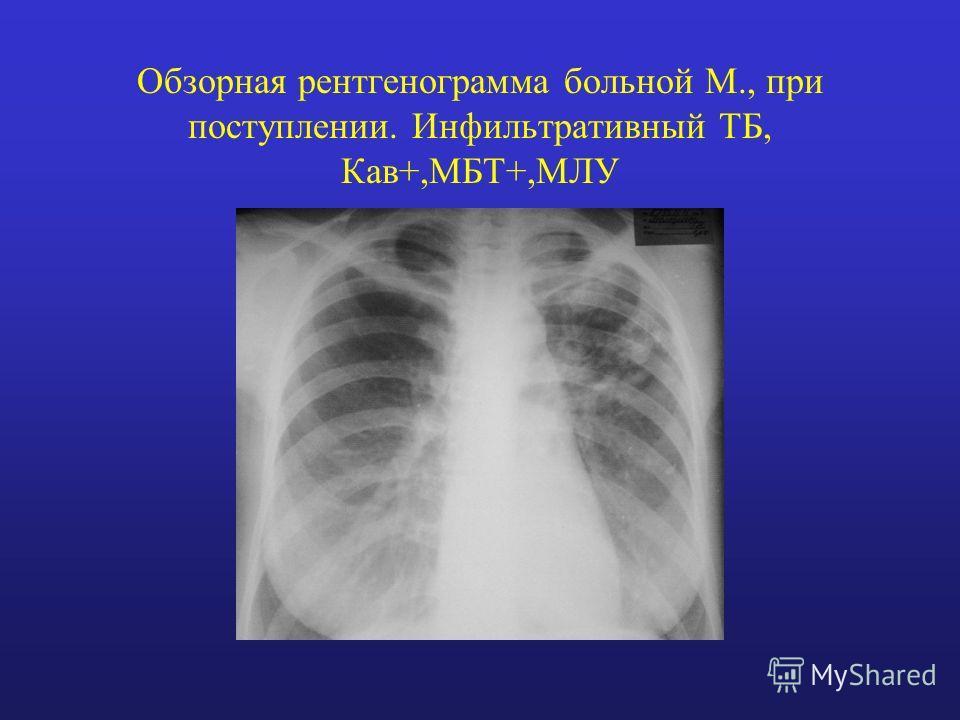 Обзорная рентгенограмма больной М., при поступлении. Инфильтративный ТБ, Кав+,МБТ+,МЛУ