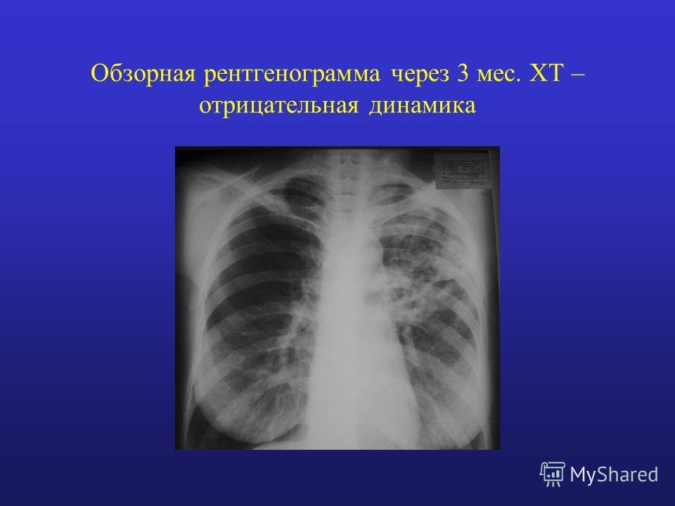 Обзорная рентгенограмма через 3 мес. ХТ – отрицательная динамика
