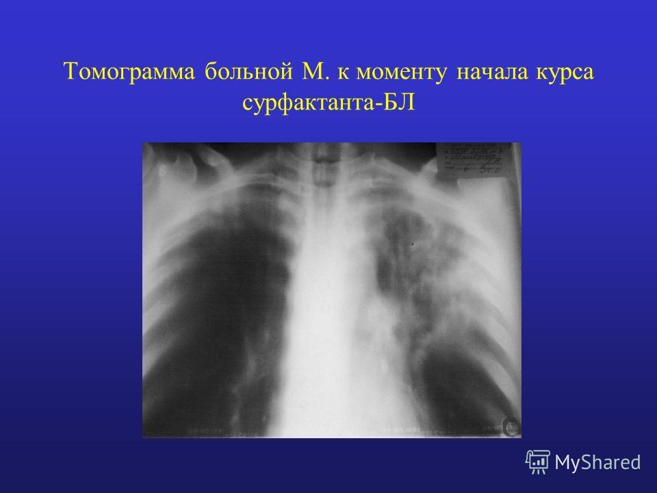Томограмма больной М. к моменту начала курса сурфактанта-БЛ