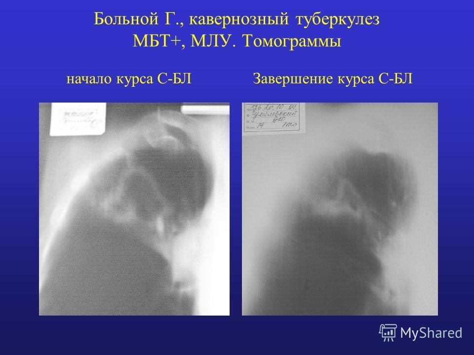 Больной Г., кавернозный туберкулез МБТ+, МЛУ. Томограммы начало курса С-БЛЗавершение курса С-БЛ