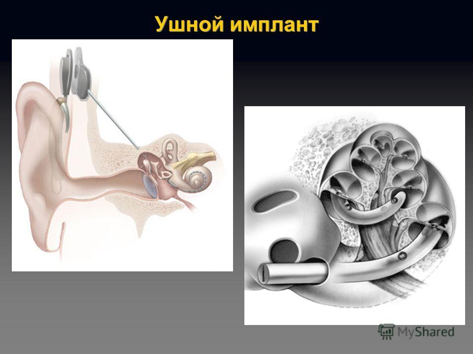 Ушной имплант