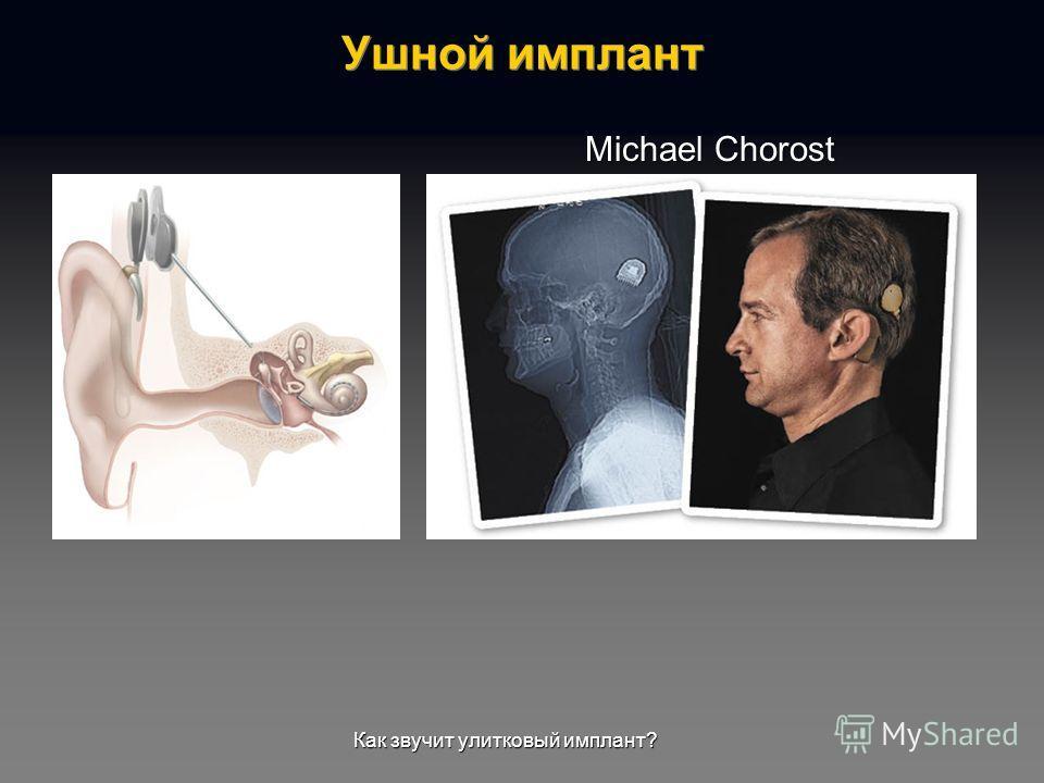 Michael Chorost Как звучит улитковый имплант?
