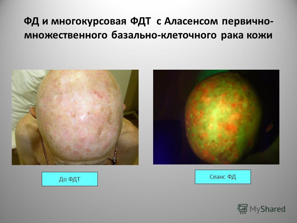 ФД и многокурсовая ФДТ с Аласенсом первично- множественного базально-клеточного рака кожи Сеанс ФД До ФДТ