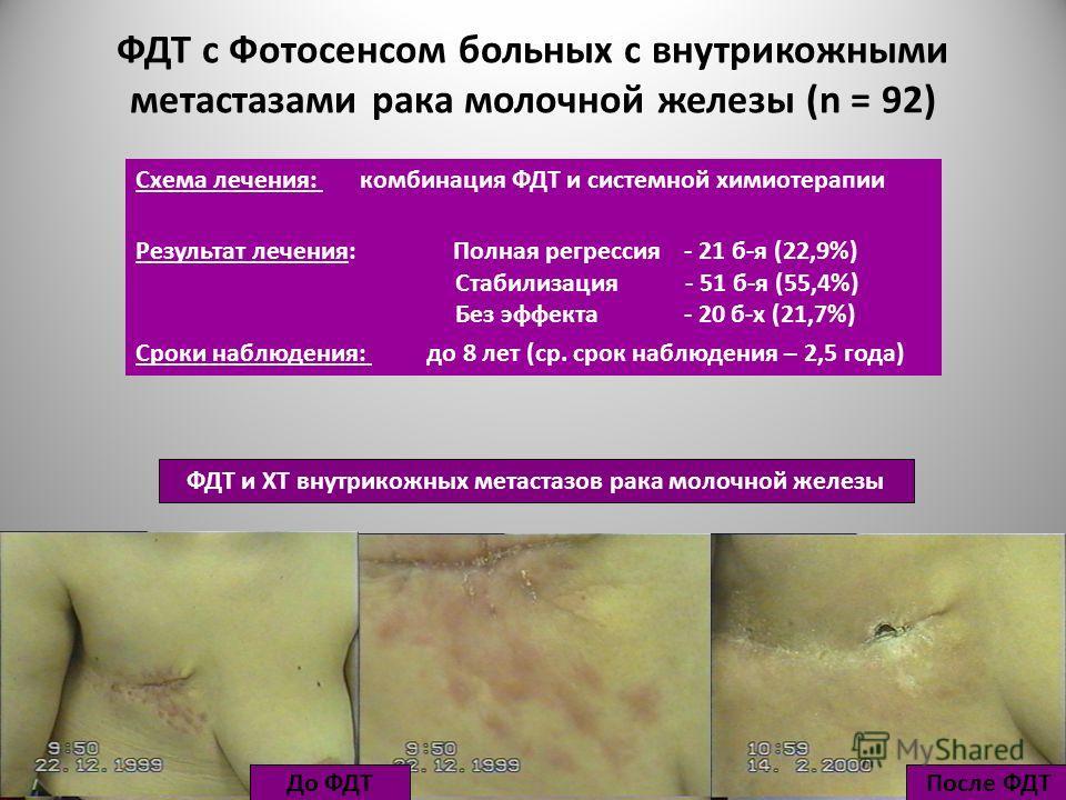 ФДТ с Фотосенсом больных с внутрикожными метастазами рака молочной железы (n = 92) Схема лечения: комбинация ФДТ и системной химиотерапии Результат лечения: Полная регрессия - 21 б-я (22,9%) Стабилизация - 51 б-я (55,4%) Без эффекта - 20 б-х (21,7%)
