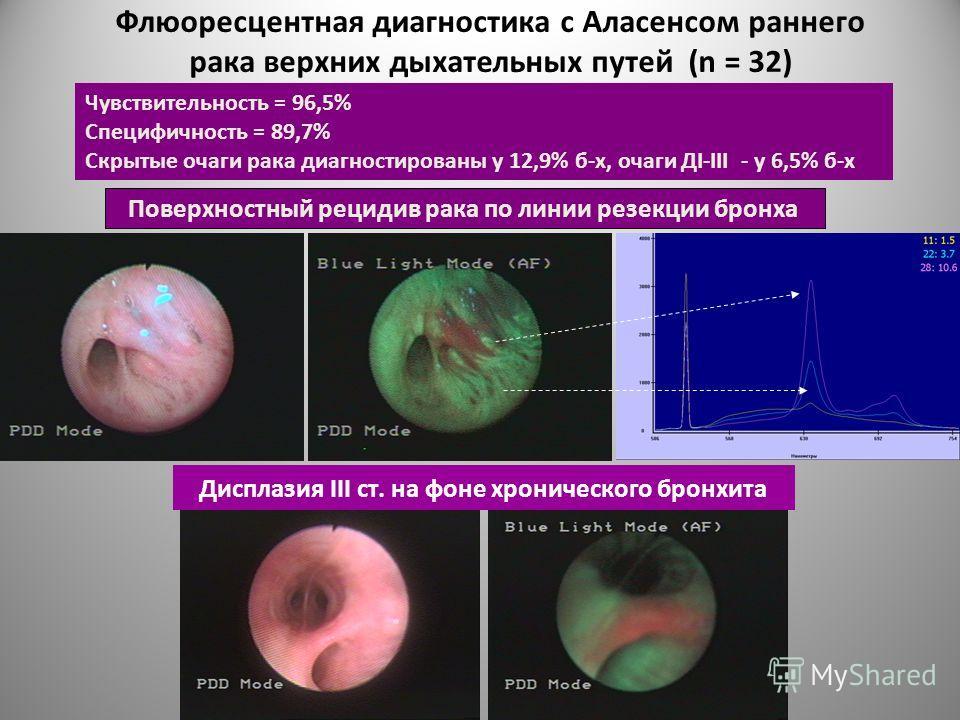 Флюоресцентная диагностика с Аласенсом раннего рака верхних дыхательных путей (n = 32) Поверхностный рецидив рака по линии резекции бронха Чувствительность = 96,5% Специфичность = 89,7% Скрытые очаги рака диагностированы у 12,9% б-х, очаги ДI-III - у