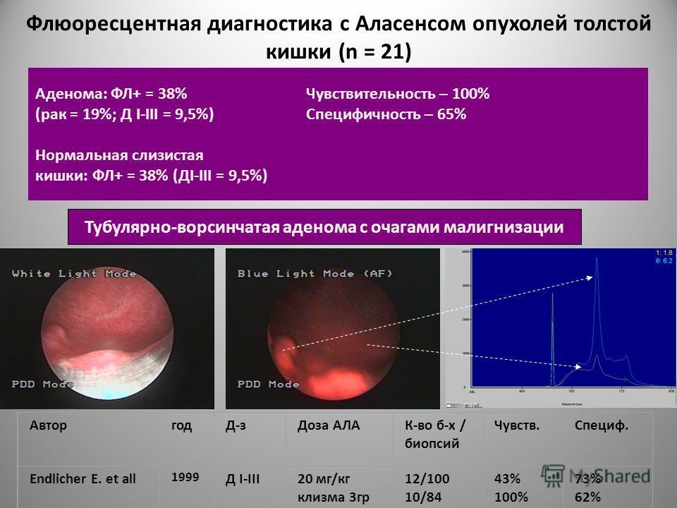 Флюоресцентная диагностика с Аласенсом опухолей толстой кишки (n = 21) Аденома: ФЛ+ = 38% Чувствительность – 100% (рак = 19%; Д I-III = 9,5%) Специфичность – 65% Нормальная слизистая кишки: ФЛ+ = 38% (ДI-III = 9,5%) Тубулярно-ворсинчатая аденома с оч
