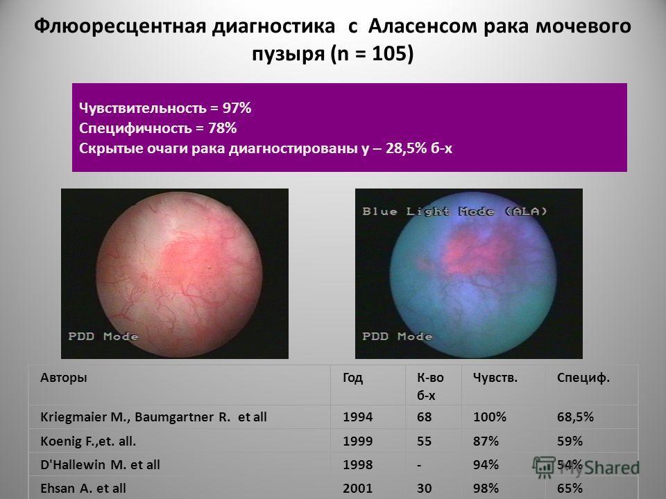 Флюоресцентная диагностика с Аласенсом рака мочевого пузыря (n = 105) АвторыГодК-во б-х Чувств.Специф. Kriegmaier M., Baumgartner R. et all199468100%68,5% Koenig F.,et. all.19995587%59% D'Hallewin M. et all1998-94%54% Ehsan A. et all20013098%65% Чувс