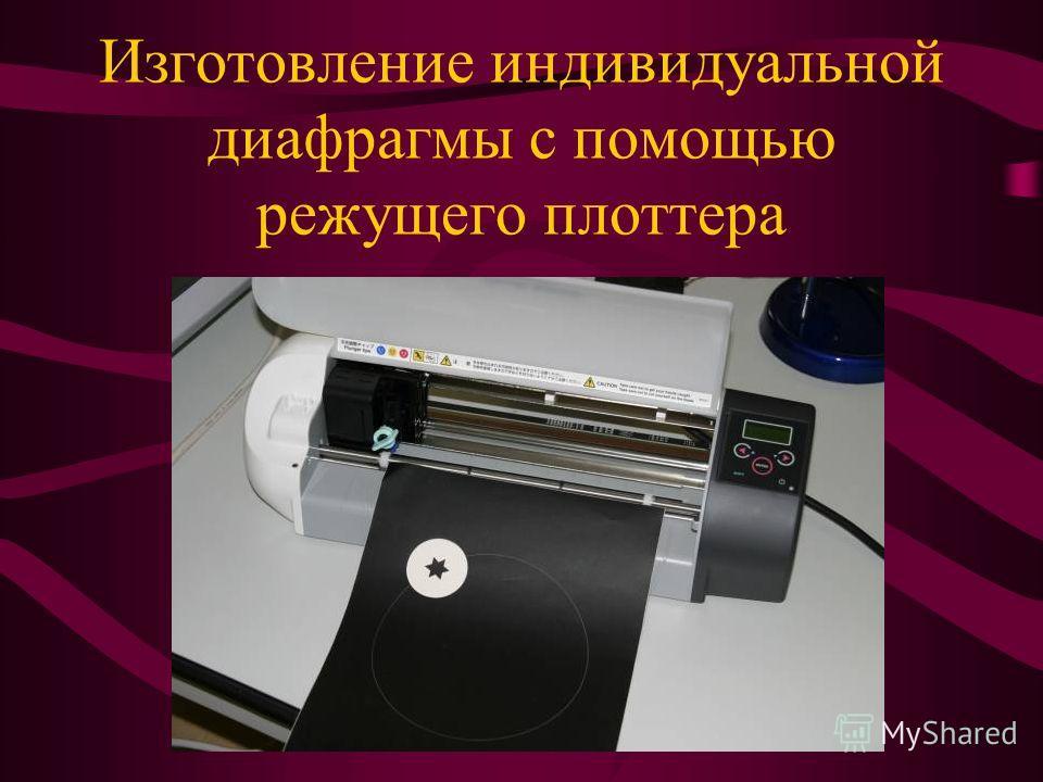 Изготовление индивидуальной диафрагмы с помощью режущего плоттера
